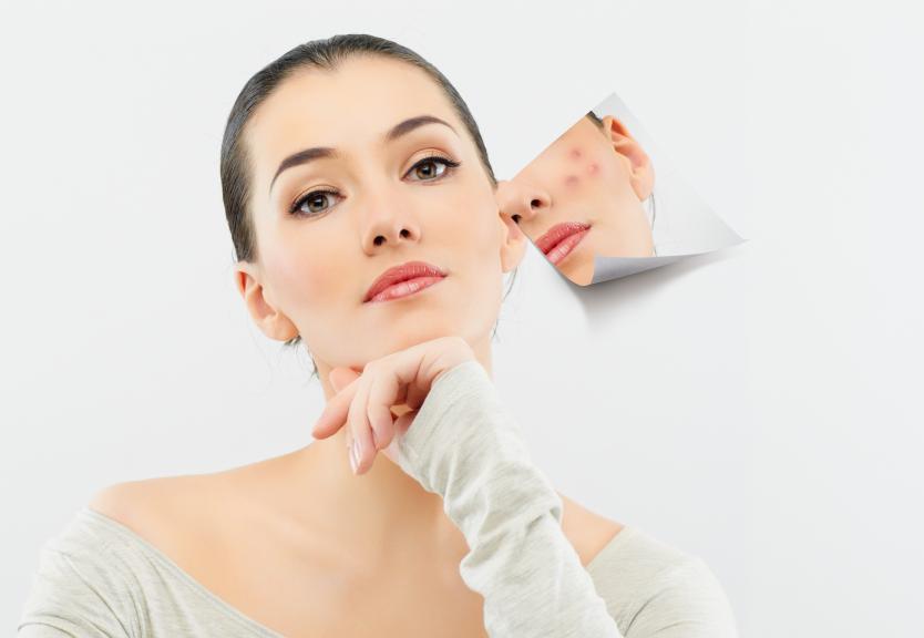 Creme ácido glicólico : saiba como usar